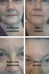 joan before - after 1
